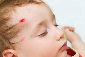 Wisconsin accident lawyer, Wisconsin injury attorney